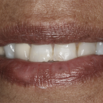 veneers-before